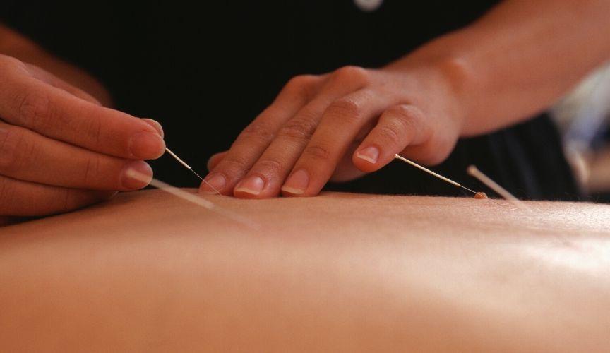 L'utilizzo clinico dei punti Shu del dorso in agopuntura