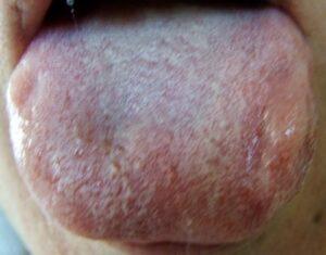 tongue2